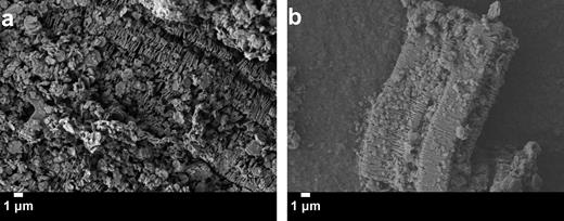 SEM micrographs of kaolinite (G.3 g) aggregates dispersed in 5 mL of cyclohexane and 1.5 mL of toluene (a) with G.G75 g of polystyrene magnified 4,GGG × and (b) with G.G75 g ethyl cellulose magnified 3,7GG ×.