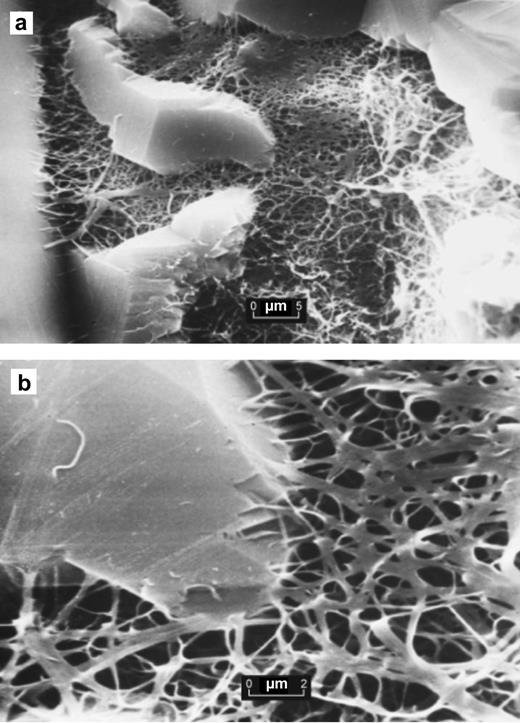 SEMs showing (a) authigenic pore-filling illite from the Magnus Sandstone, North Sea which is (b) anchored in a later quartz overgrowth. Samples were prepared from preserved core after critical point drying and yielded XRD patterns characteristic of I/S (McHardy et al., 1982).