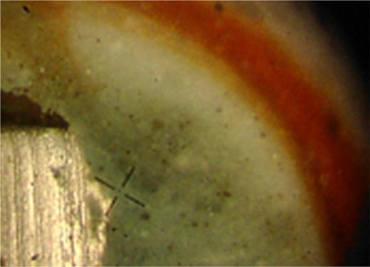 Corrosion of an iron-pellet in contact with bentonite (aerobic corrosion is followed by anaerobic corrosion; image width ≈3 cm; after Kaufhold et al., 2015).