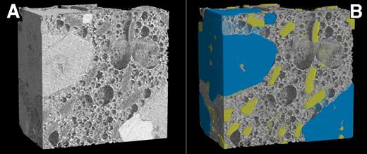 Volume renderings of a subvolume of sample STR1. (A) Original, raw volume and (B) crystalline phases have been colored after multiphase segmentation processing. Blue and yellow colors mark the pyroxenes and feldspars, respectively.