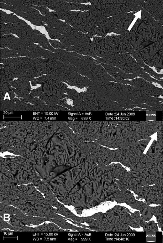 Backscattered electron images of sample B. (A) Thin lamination is well developed in planes nearly perpendicular to the loading axis (parallel to the shear plane). (B) The olivine matrix also underwent significant grain-size reduction. In places, the original large grain can still be recognized. Adjacent small grains have close crystallographic orientations. Block arrows indicate the rotational axis for shear generation.
