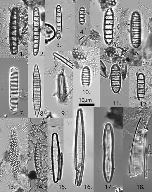 "1—Crucidenticula sawarmurae Yanagisawa and Akiba, sample 29A-183R-1, 58 cm. 2 and 3—Crucidenticula nicobarica (Grunow) Akiba and Yanagisawa, 2 is sample 29A-83R-1, 90 cm; 3 is sample 29A-130R-1, 114 cm. 4—Denticulopsis lauta (Bailey) Simonsen, sample 29A-157R-1, 70 cm. 5—Denticulopsis hyalina (Schrader) Simonsen, sample 29A-83R-1, 90 cm. 6, 10, and 11—Denticulopsis simonsenii Yanagisawa and Akiba, 6 and 11 are sample 29A-85R-1, 74 cm; 10 is sample 29A-101R-1, 62 cm. 7—Nitzschia cf. N. challengerii Schrader, sample 29A-83R-1, 90 cm. 8—""Denticula"" norwegica Schrader and Fenner, sample 29A-130R-1, 114 cm. 9—Rhizosolenia miocenica Schrader, sample 29A-83R-1, 90 cm. 12—Crucidenticula punctata (Schrader) Akiba and Yanagisawa, sample 29A-83R-1, 90 cm. 13—Rossiella paleacea (Grunow) Desikachary and Maheswari, sample 29A-157R-1, 70 cm. 14—Koizumi adaroi Yanagisawa, sample BG&E (Baltimore Gas and Electric Company), 100 ft. 15—Cavitatus rectus Akiba and Hiramatsu, sample 29A-167R-2, 144 cm. 16—Cavitatus jouseanus (Shesukova-Poretzkaya) Williams, sample 29A-130R-1, 114 cm. 17—Rouxia diploneides Schrader, sample 29A-130R-1, 114 cm. 18—Mediaria splendida Sheshukova-Poretzkaya, sample 29A-130R-1, 114 cm."