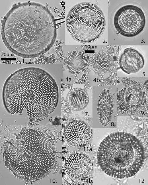 1—Cestodiscus pulchellus var. maculatus Kolbe, sample BG&E (Baltimore Gas and Electric Company), 269.8–270.8 ft. 2—Thalassiosira perispinosa Tanimura, sample 29A-130R-1, 114 cm. 3—Actinocyclus ingens Rattray, sample 29A-130R-1, 114 cm. 4a, 4b, and 7—Thalassiosira fraga Schrader, 4a and 4b, low and high focus, sample BG&E, 259–260 ft.; 7, sample 29A-191R-1, 53 cm. 5—Raphidodiscus marylandicus Christian, sample 29A-167R-2, 114 cm. 6—Azpeitia salisburyana (Lohman) P.A. Sims, sample 29A-130R-1, 114 cm. 8—Coscinodiscus lewisianus Greville, sample 29A-157R-1, 70 cm. 9—Cestodiscus peplum Brun, sample 29A-157R-1, 70 cm. 10—Azpeitia vetustissima var. voluta (Baldauf), Sims, Fryxell, and Baldauf, sample 29A-157R-1, 70 cm. 11a and 11b—Thalassiosira tappanae Barron, high and low focus, sample 29A-124R-2, 110 cm. 12—Annellus californicus Tempère, sample 29A-171R-2, 100 cm.