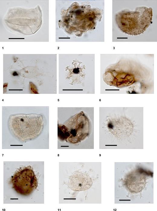 Common marine palynomorphs in sequence m5.8 (lower Burdigalian, dinoflagellate zones DN2a, DN2b), including species, sample number, depth (in parentheses), and England Finder coordinates. (1) Batiacasphaera sphaerica Stover 1977: 313–29A-211R1 (31–32 cm), M54/4-N58/1. (2) Cordosphaeridium cantharellus (Brosius) Sarjeant, 1981: 313–29A-208R2 (44–45 cm), F55/0–1. (3) Cerebrocysta satchelliaede Verteuil and Norris 1996: 313–29A-208R2 (44–45 cm), T71/2. (4) Distatodinium paradoxum (Brosius) Eaton, 1976: 313–29A-208R2 (44–45 cm), W38/1–3. (5) Cordosphaeridium minimum: 313–29A-208R2 (44–45 cm), N43/0–3. (6) Cousteaudinium aubryaede Verteuil and Norris 1996: 313–29A-211R1 (31–32 cm), P57–0. (7) Stoverocysta conerae Biffi and Manum 1988: 313–29A-208R2 (44–45 cm). (8) Cribroperidinium tenuitabulatum (Gerlach) Helenes 1984: 313–27A-165R-CC; 10. (9) Cleistosphaeridium placacanthum: 313–29A-211R1 (31–32 cm). (10) Sumatradinium soucouyantiae de Verteuil and Norris 1992: 313–29A-208R2 (44–45 cm), R67/2. (11) Hystrichokolpoma rigaudiae Deflandre and Cookson 1955: 313–29A-211R1 (31–32 cm), P67–1. (12) Spiniferites mirabilis (Rossignol) Sarjeant: 313–29A-212R1 (38–39 cm), N36/0–3.