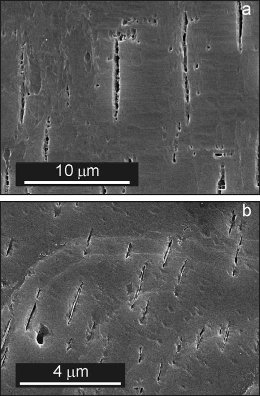 Perth. SE images of HF etched (001) cleavage surface showing lenticular microperthitic albite lamellae parallel to b, enlarged by etching, in microcline. (a) Larger albite lamellae, considerably dissolved, with etch pits probably developed on misfit dislocations. The sample is somewhat over-etched, but their periodic character can be seen in the lamellae at the left. (b) Field of very small lamellae. Albite lenses have dissolved rapidly at their interfaces because of coherency strain, but retain albite in their cores.