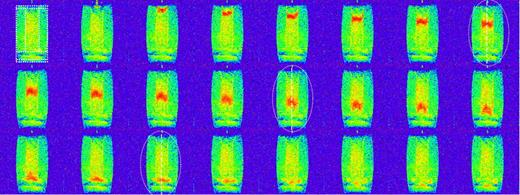 Motion of the tracer cloud of diethylenetriaminepentaacetate in the form Gd-DTPA2− through the coaxial model soil column. The overlaid dotted frame indicates the internal structure of the system (compare with Fig. 2). The top left image is the state immediately before injection; the subsequent images were recorded with a temporal difference of 37.2 s, and the total time was 24 min 11 s. The irrigation rate was 1.2 cm min−1. The overall cylinder appears slightly concave due to small inhomogeneities of the imaging gradients near the edges. The dotted ovals indicate the plume positions at 3 min 43 s, 7 min 49 s, and 10 min 32 s to which a Gaussian function was fit.